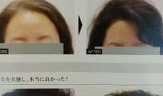 『生える頭皮』づくりを叶えるヘアケアシリーズ発売
